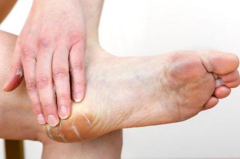 Cómo aliviar las rozaduras de zapatos con estos remedios naturales
