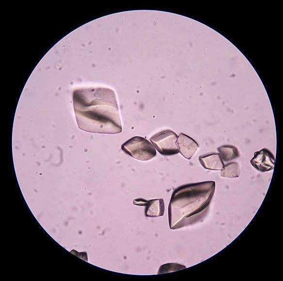 Cristales de acido urico