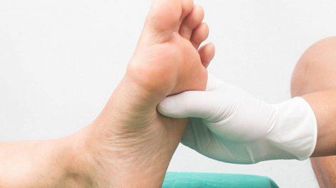 Cómo cuidar el pie diabetico
