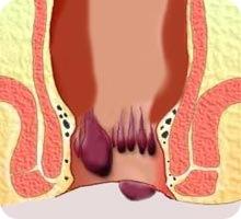 Curar hemorroides