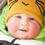 Dermatitis atópica en el bebé: todo lo que necesitas saber