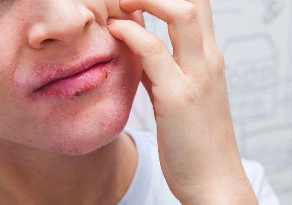 Dermatitis atópica en los labios