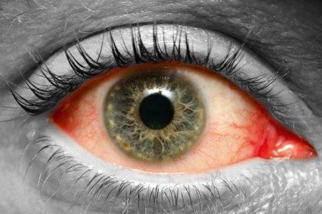 Por qué ocurre el desprendimiento de retina