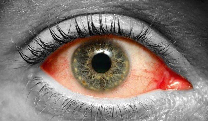 Por qué se produce el desgarramiento de retina
