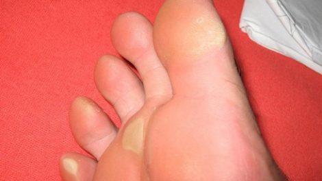 Descubre algunos consejos naturales para quitar los callos de manos y pies