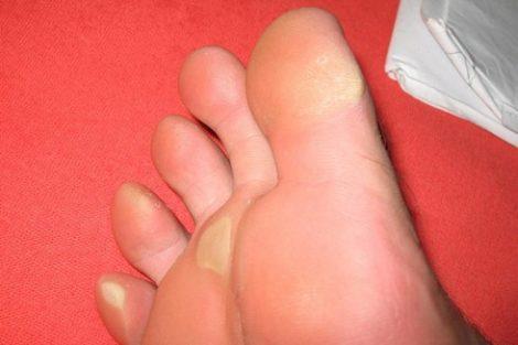 Cómo eliminar los callos naturalmente de pies y manos