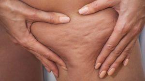 Consejos contra la celulitis