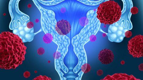 Enfermedades de los ovarios