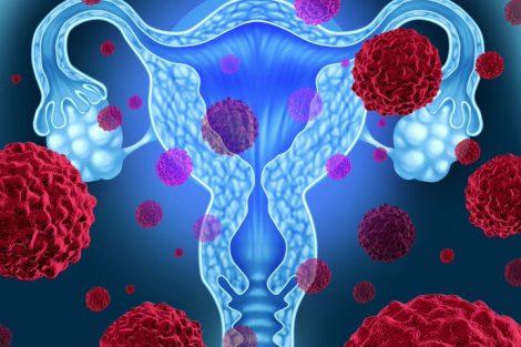 Principales enfermedades de los ovarios y síntomas de alerta