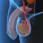 Principales enfermedades de los testículos y sus síntomas