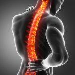 Escoliosis: qué es, causas, síntomas y tratamiento