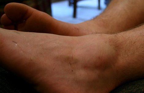 Cómo prevenir un esguince de tobillo