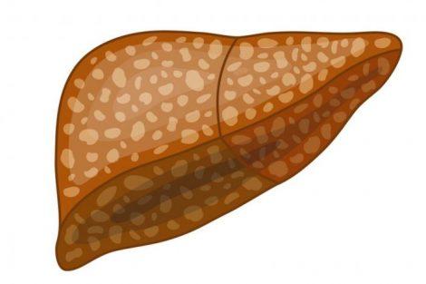 Esteatosis hepática: qué es, síntomas, causas y tratamiento