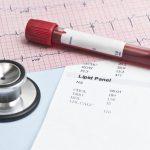 Examen de colesterol en sangre: total, LDL y HDL