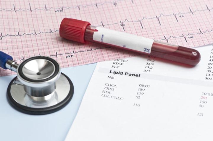 Analisis de colesterol en sangre