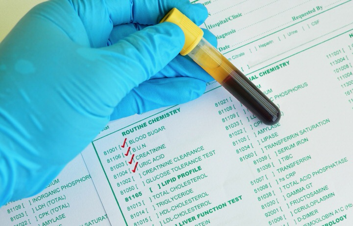 Análisis de creatinina en sangre