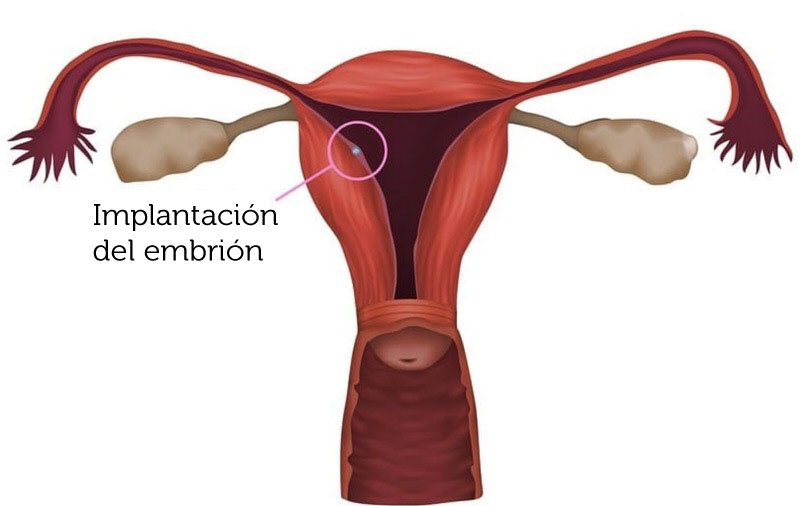Embrión implantado en el endometrio