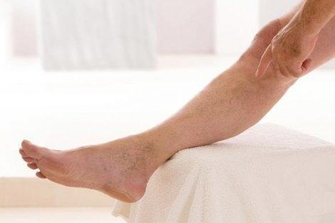 Qué es la flebitis y la tromboflebitis: síntomas, causas y tratamiento
