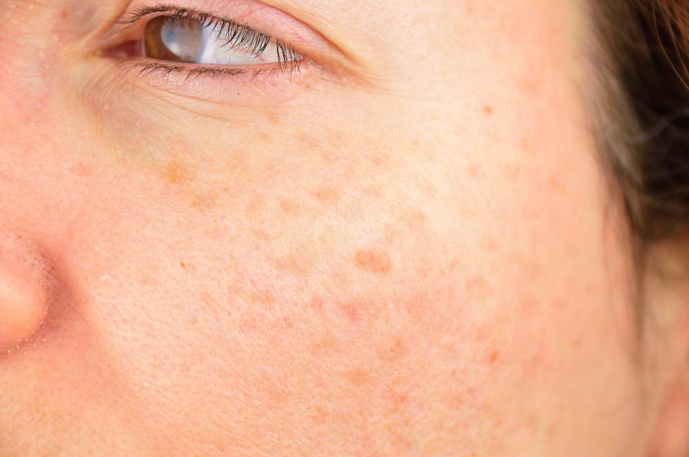 Formas eficaces para eliminar las manchas de la piel