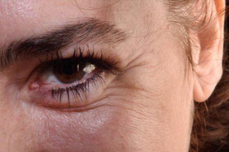 Cómo frenar la aparición de las arrugas con consejos naturales