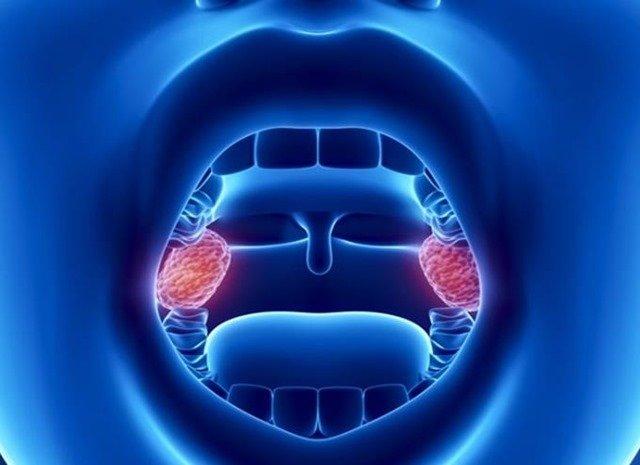 ¿Para qué sirven las amígdalas?