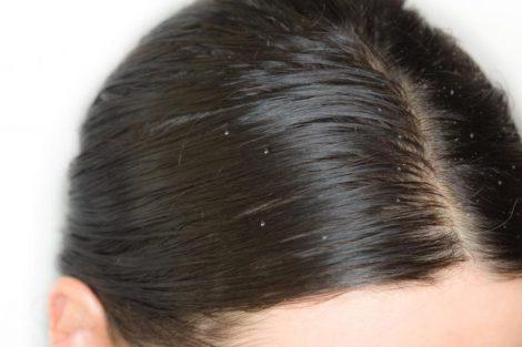 Por qué aparece la grasa en el pelo: causas principales