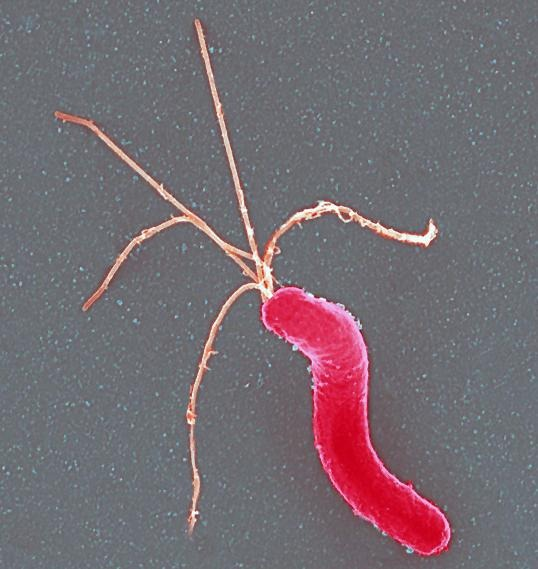 Qué es la Helicobacter Pylori
