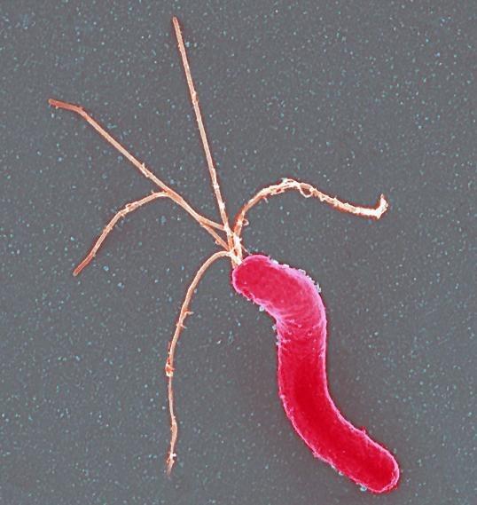 ¿Qué es la bacteria Helicobacter Pylori?