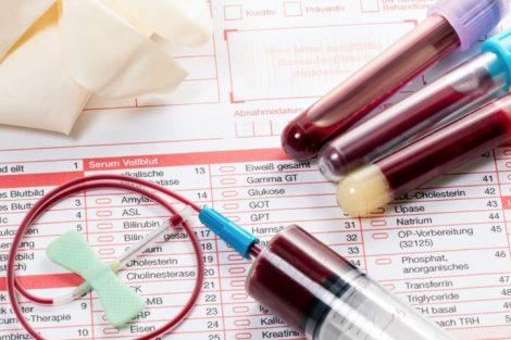 Qué es un hemograma, para qué sirve y valores normales