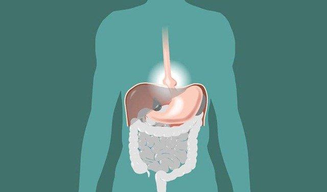 C mo mejorar los s ntomas de la hernia de hiato naturalmente - Alimentos prohibidos para la hernia de hiato ...