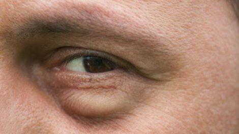 hinchazon-ojos