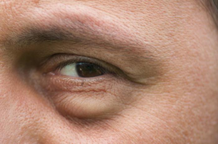 Hinchazón de los ojos