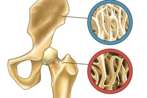 Hipocalcemia: qué es, síntomas, causas y tratamiento