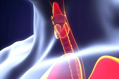 Hipotiroidismo primario: síntomas, causas y diagnostico