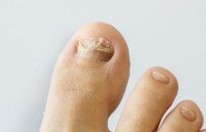 Por qué aparecen los hongos en los pies y que síntomas producen