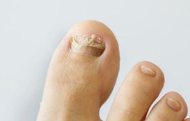 Síntomas de los hongos en los pies
