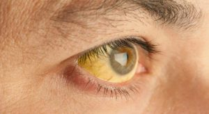 Ictericia: qué es, causas, síntomas y tratamiento