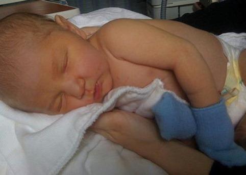 Ictericia en recién nacidos
