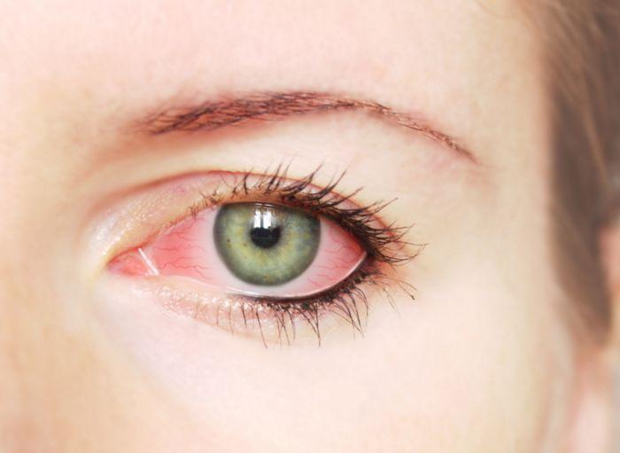 irritacion-ojos-lagrimas