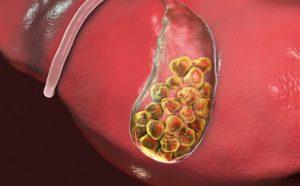 Litiasis biliar (colelitiasis): qué es, síntomas, causas y tratamiento