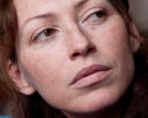 Por qué aparecen manchas oscuras en la piel