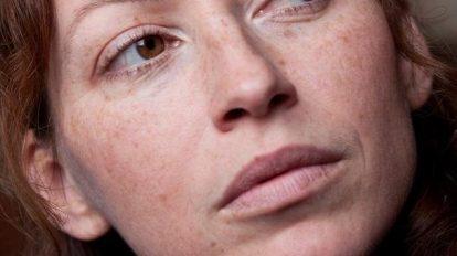 Las principales causas de manchas oscuras en la piel
