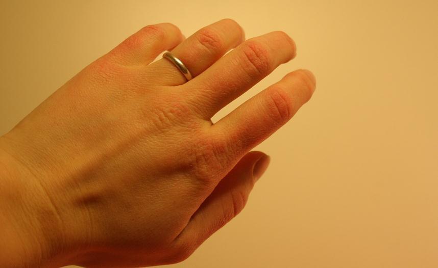 Consejos para las manos secas