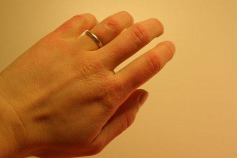 Consejos naturales para las manos secas