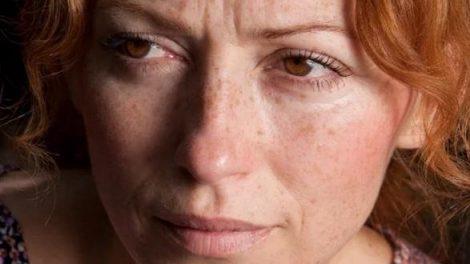 Consejos naturales contra las manchas de la piel
