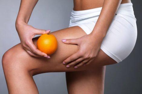 6 Mitos sobre la Celulitis
