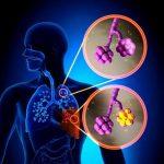 Neumonía: síntomas, causas y tratamiento