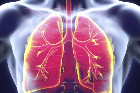 Hábitos saludables que nos ayudarán a prevenir una neumonía