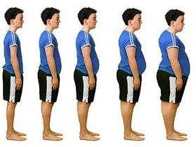 No tratar la obesidad a tiempo reduce de 15 a 20 años la esperanza de vida
