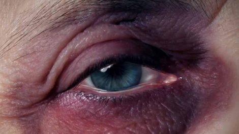ojo-morado